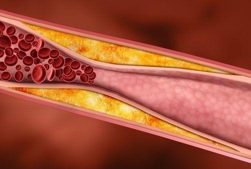 Plantas medicinales que combaten el colesterol