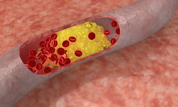plantas medicinales frente al colesterol